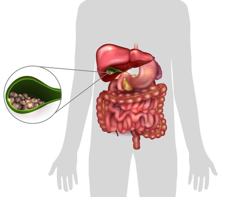 zsírégetés menopauzában karcsúsító tükör