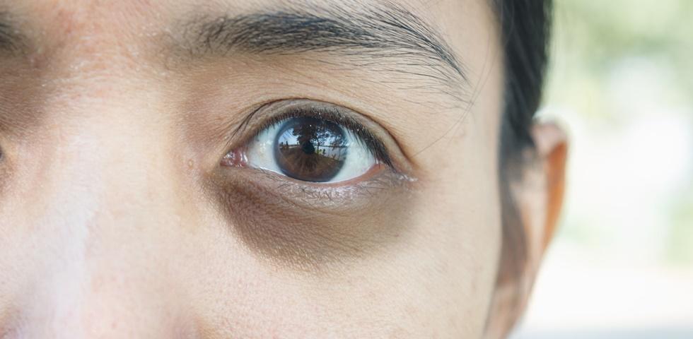 a szem alatti varikózis)