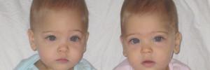 A világ leggyönyörűbb testvérpárja voltak - Így élnek ma az ikerlányok