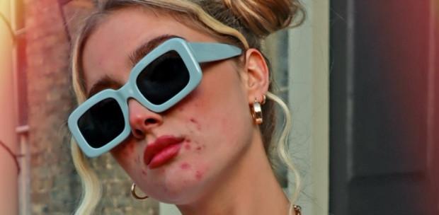 Retusálatlan fotó, pattanásos modell - kiveri a biztosítékot az új H&M-reklám