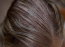 A magas ösztorgénszint hajhullást is okozhat.