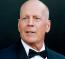 Bruce Willis  A 66 éves legendáért még mindig bolondolnak a nők: legalábbis ezt bizonyítja az, hogy minden hasonló szavazásban és összesítésben garantált helye van. Az elmúlt egy évben a világ 8. legdögösebb kopasz híressége lett.