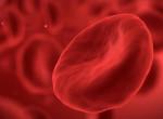 Lehet, hogy Te is vérszegény vagy? Így ismerheted fel a tünetei alapján