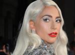 Lady Gaga rajongói aggódnak: Betegség miatt lemondta koncertjét