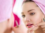 Hét dolog, ami pattanásokat okoz: ezekkel teszed tönkre a bőröd