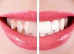 Így lesz tökéletes mosolyod: Egyszerű és gyors fogfehérítő módszer
