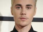 Miért nem csinál vele valamit? Justin Bieber képén megdöbbent a világ