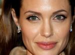Angelina Jolie-vá műttette magát az orosz modell, az eredmény döbbenetes