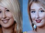 Barbie-vá akarta műttetni magát a lány, de borzasztó, mi lett belőle