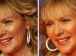 Így néznek ki a sztárok retusálás előtt és után - Fotók