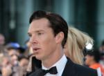 Az igen! Láttad már kopaszon a Sherlock sztárját?