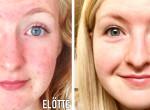 Pattanásos vagy? Ez a 8 lány kikísérletezte a gyönyörű bőr titkát!