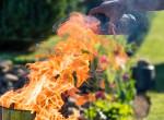 Így kezeld gyorsan és hatékonyan az égési sérüléseket