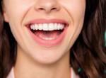Fehér fogakra vágysz? Nem kell hozzá drága kezelés