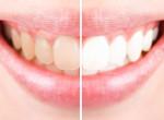 Sokkoló: így néztek ki a sztárok, mielőtt megcsináltatták a fogsorukat
