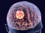 Megfejtették a leghalálosabb agydaganat ősrégi titkát