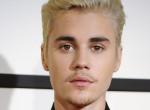 Mi történt Justin Bieber arcával? Rémesen néz ki az énekes bőre