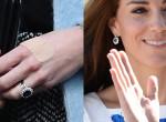 Miért van mindig sebtapasz Katalin hercegné ujján?