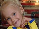 Ritka szindrómában szenved a kislány: Elképesztő, milyen tőle a haja