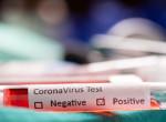 Nem hiszed el, mit tett a koronavírus-teszttel ez a férfi - Mindenki rajta nevet