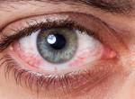 Ez az applikáció egy fotó alapján felismeri, ha szembetegséged van