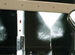 A Google algoritmusa még az orvosokat is lekörözi a mellrákszűrésben