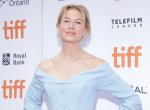 Arcplasztikája miatt bántották a színésznőt - Így reagált