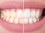 Ragyogó mosoly pár nap alatt, így fehérítheted a fogad fogfehérítés nélkül