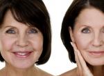 Hialuronsavas arckezelés: előnyei és fontossága a bőrfiatalításban