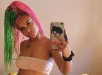 Élő videóban hullott ki az Insta-modell összes haja - Videó