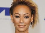 Súlyos balesetet szenvedett - Kórházba került a Spice Girls énekesnője