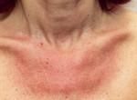 Fotók bizonyítják: Ha ezzel kened a leégett bőröd, 30 perc alatt begyógyul