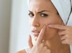 Így kerülheted el, hogy pattanásaid legyenek a maszktól