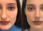 Ennyire meghatározó az orrunk formája: Plasztika előtt-utáni fotók