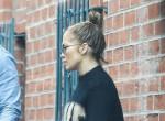 Mi történt J-Lo arcával? Magyarázatot várnak a rajongók - Fotók