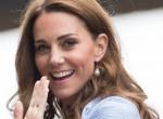 Komoly vádak -  Íme az igazság Katalin hercegné botox kezeléséről