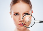 Vigyázz: Ez lehet az oka annak, ha túl száraz a bőröd