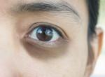 Fekete karikák és véraláfutás - Ilyen kórokra utalnak a gyakori szemtünetek