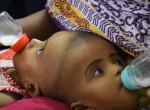 Sikeres volt a fejüknél összenőtt bangladesi sziámi ikrek újabb operációja
