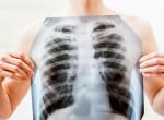 Durva videó: ez a különbség egy egészséges és egy dohányos tüdő között