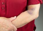 Gyakran látsz testeden véraláfutásokat? Ez lehet az oka