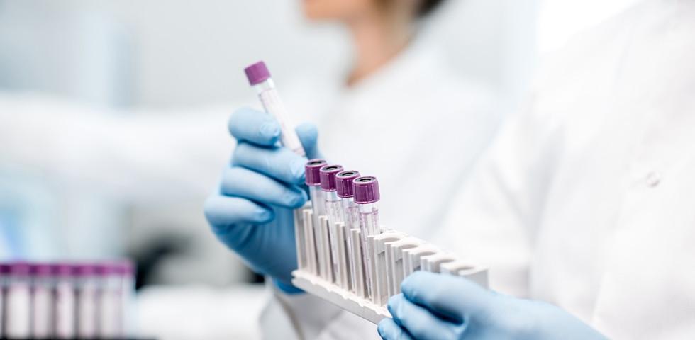Korszakos áttörés: félszáz ráktípus kimutatható ebből az egyszerű vértesztből
